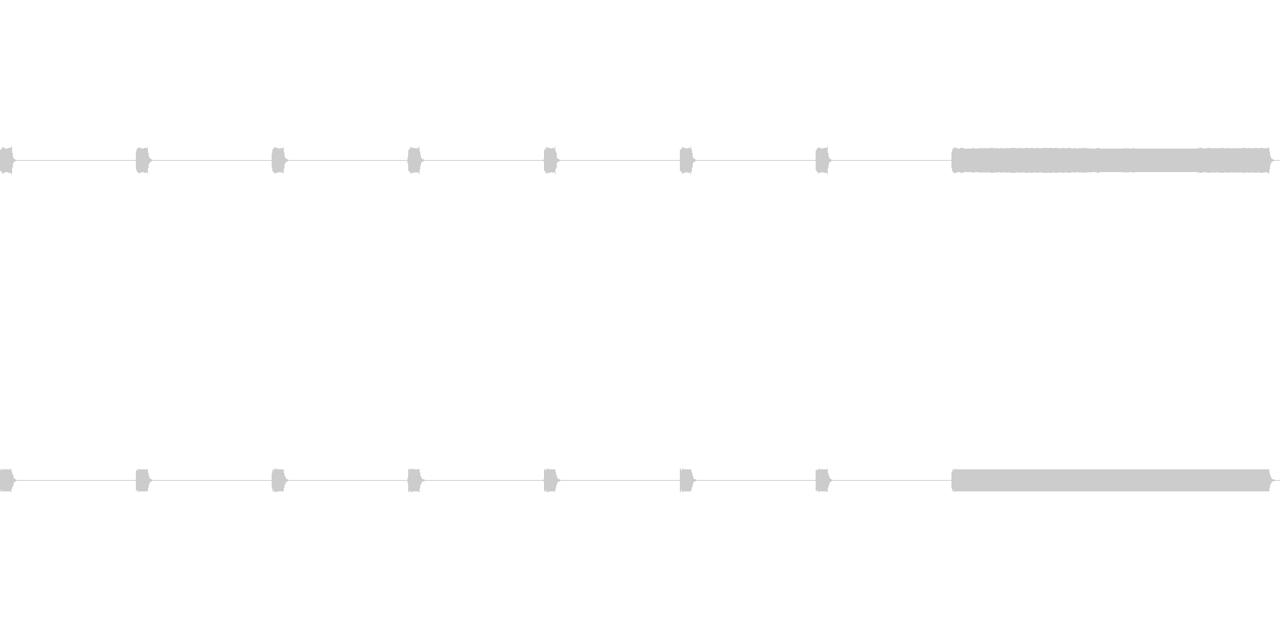 ピッピッピー:心電図の音の未再生の波形