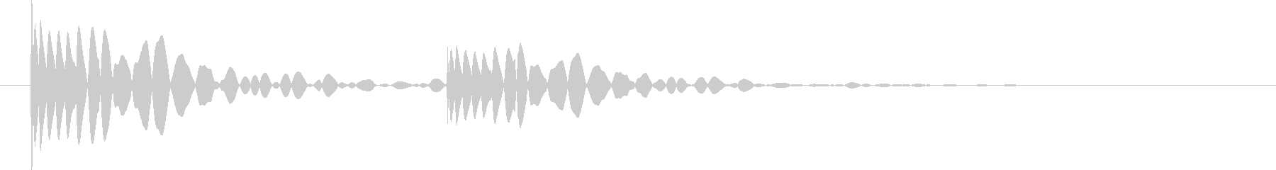 ドクン。心臓の音Aの未再生の波形